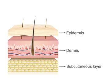 anatomia-de-la-piel-diabetrics-1