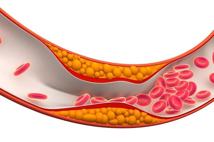 arteriopatia-periferica-diabetrics